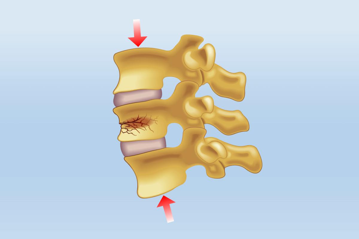 Treating Vertebral Compression Fractures